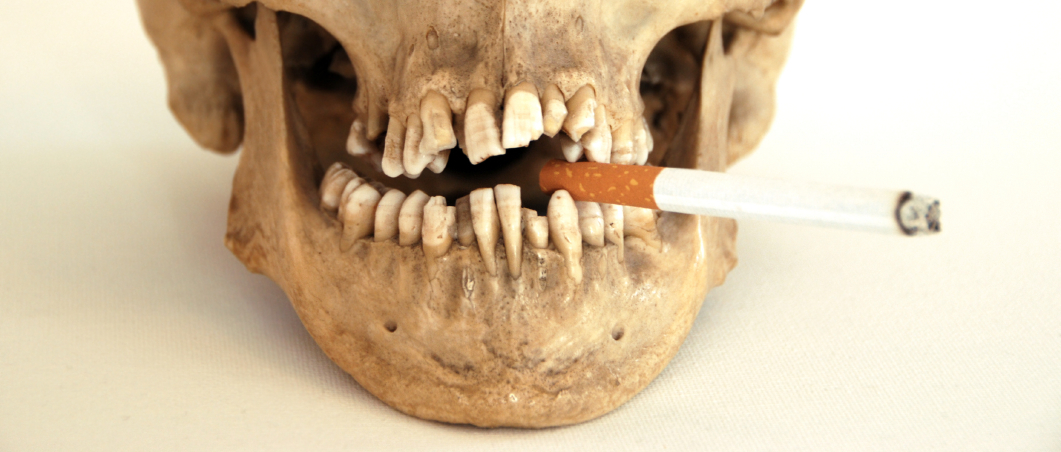 Tobacco and Periodontal Disease
