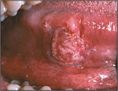Erythroleukoplakia | brandon periodontics
