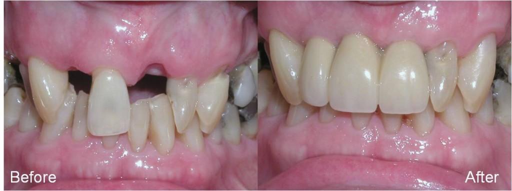 Support | brandon dental implant