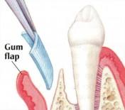Tissue Regeneration flap | brandon periodontics