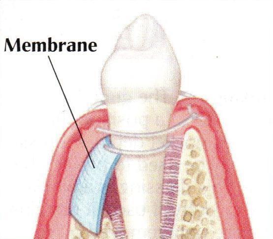 Tissue Regeneration membrane | brandon periodontics