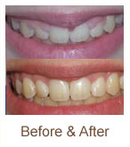 before-after | Brandon Periodontics