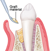 bone grafting | brandon periodontics
