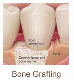 bone-grafting | Brandon Periodontics