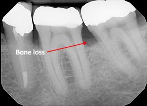bone loss | brandon periodontics