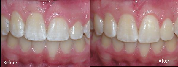 crown lenghtening | brandon periodontics