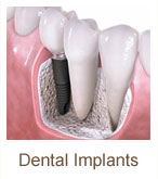 dental-implants | Brandon Periodontics