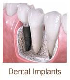 dental-implants | Brandon Periodontics