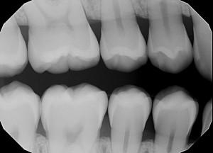 digital x ray | brandon perio