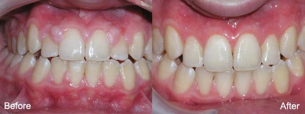 gum recontouring | brandon periodontics