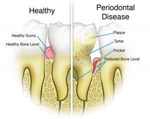periodontal disease develop | brandon periodontics