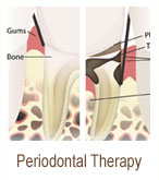 periodontal-therapy | Brandon Periodontics