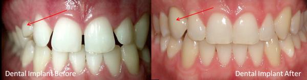 single dental implant | brandon dental implant