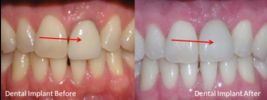 single implant tooth | brandon dental implant